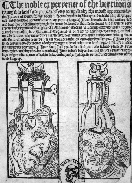 woodcut of trepanation